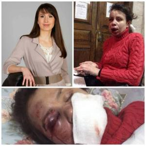 Ukrainian journalist - Tetyana Chornovol before and after her pro-Ukrainian, anti-Russian article was published.